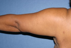 Arm Lift Before & After Patient #1043