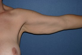 Arm Lift Before & After Patient #1052