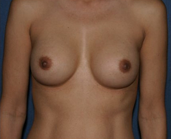 Breast Augmentation Before & After Patient #1026