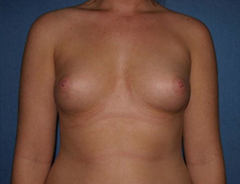 Breast Augmentation Before & After Patient #1005