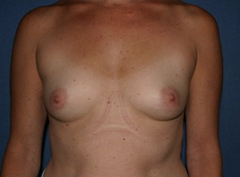 Breast Augmentation Before & After Patient #1012