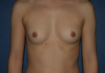 Breast Augmentation Before & After Patient #1019
