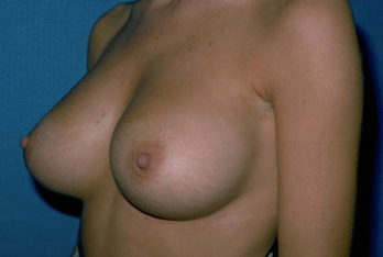 Breast Before & After Patient #971