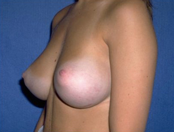 Breast Augmentation Before & After Patient #986