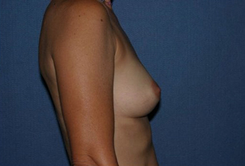 Breast Augmentation Before & After Patient #1029