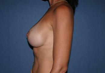 Breast Augmentation Before & After Patient #991