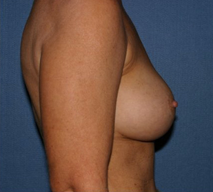 Breast Augmentation Before & After Patient #998