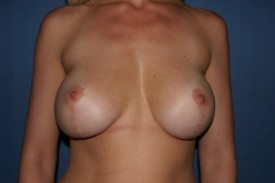Breast Lift (Mastopexy) Before & After Patient #576