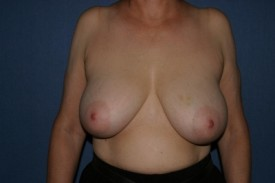 Breast Lift (Mastopexy) Before & After Patient #579