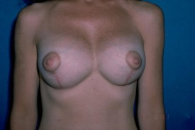 Breast Lift (Mastopexy) Before & After Patient #593