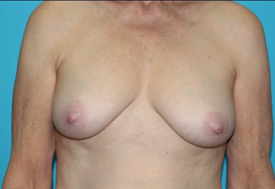 Breast Lift (Mastopexy) Before & After Patient #610