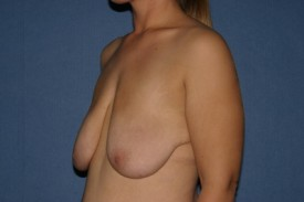 Breast Lift (Mastopexy) Before & After Patient #598