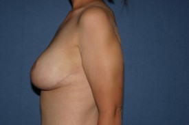 Breast Lift (Mastopexy) Before & After Patient #1133