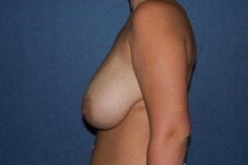 Breast Lift (Mastopexy) Before & After Patient #582