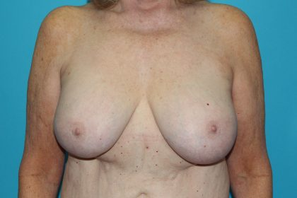 Breast Lift (Mastopexy) Before & After Patient #603