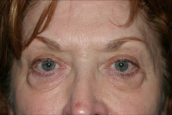 Eyelid Lift Before & After Patient #1141