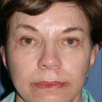 Facelift Before & After Patient #333
