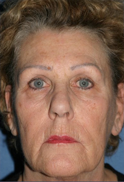 Facelift Before & After Patient #341