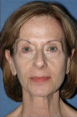 Facelift Before & After Patient #358