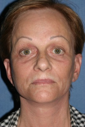 Facelift Before & After Patient #454