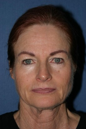 Facelift Before & After Patient #465