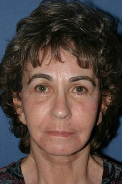 Facelift Before & After Patient #306