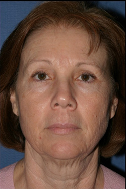 Facelift Before & After Patient #309