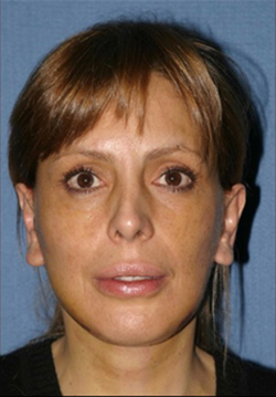 Facelift Before & After Patient #312