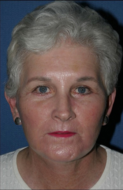 Facelift Before & After Patient #317