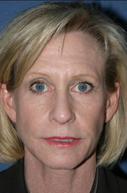 Facelift Before & After Patient #320