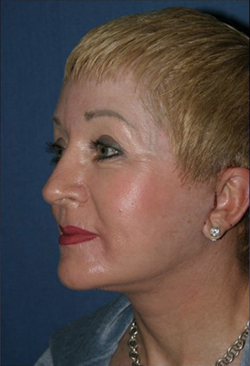 Facelift Before & After Patient #336