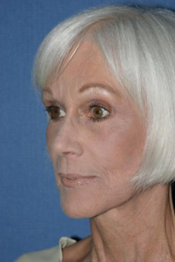 Facelift Before & After Patient #366