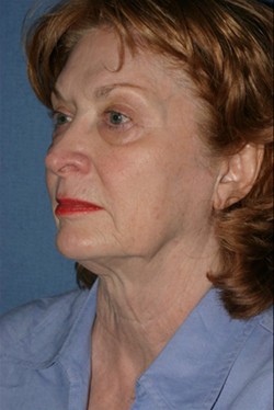 Facelift Before & After Patient #472