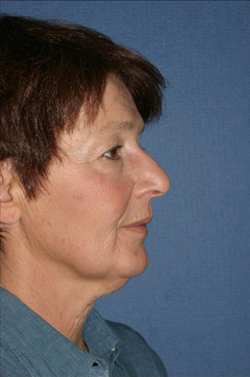 Facelift Before & After Patient #294