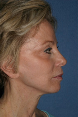Facelift Before & After Patient #301