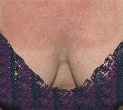 Skin Before & After Patient #1073