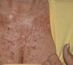 Skin Before & After Patient #1076
