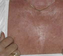 Skin Before & After Patient #1079
