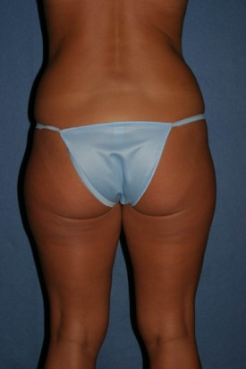 Power Assisted Liposuction Before & After Patient #1124