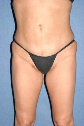 Power Assisted Liposuction Before & After Patient #1096