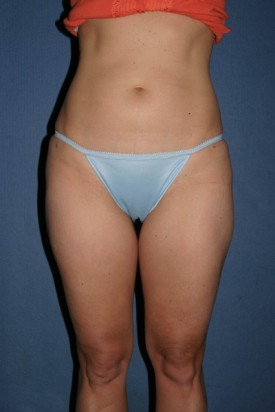 Power Assisted Liposuction Before & After Patient #1109