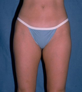 Power Assisted Liposuction Before & After Patient #1119
