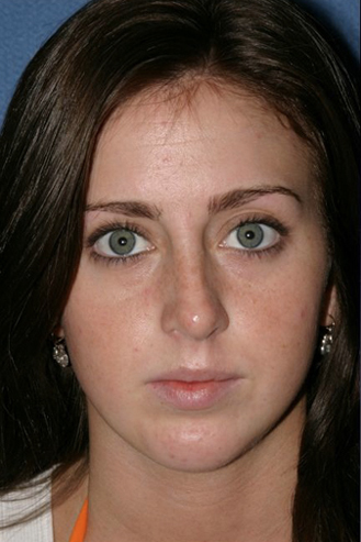 Rhinoplasty Before & After Patient #789