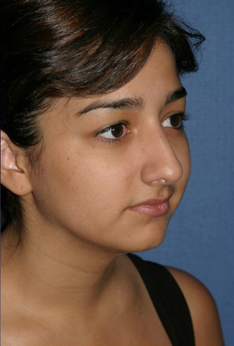 Rhinoplasty Before & After Patient #756
