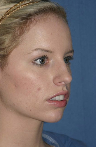 Rhinoplasty Before & After Patient #768