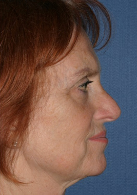 Rhinoplasty Before & After Patient #737