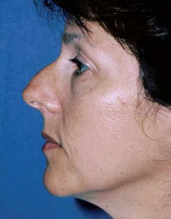 Rhinoplasty Before & After Patient #794