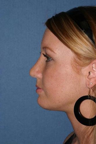Rhinoplasty Before & After Patient #799