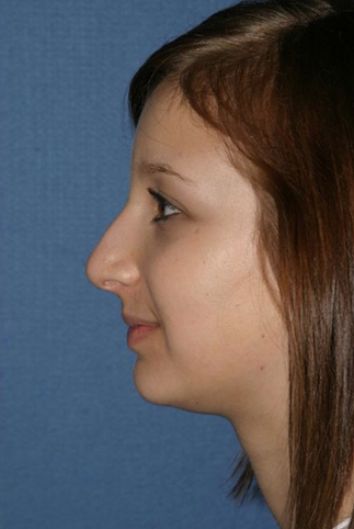 Rhinoplasty Before & After Patient #806