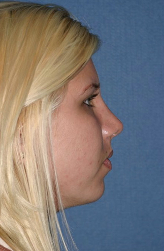 Rhinoplasty Before & After Patient #811